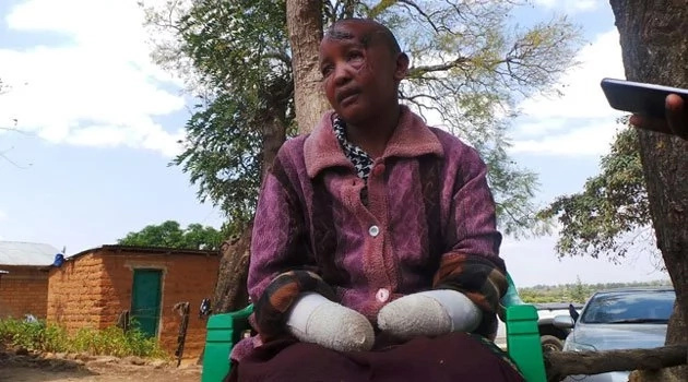 Jackline Mwende whose hands were chopped off by hubby because she was barren delivers a bouncing baby boy