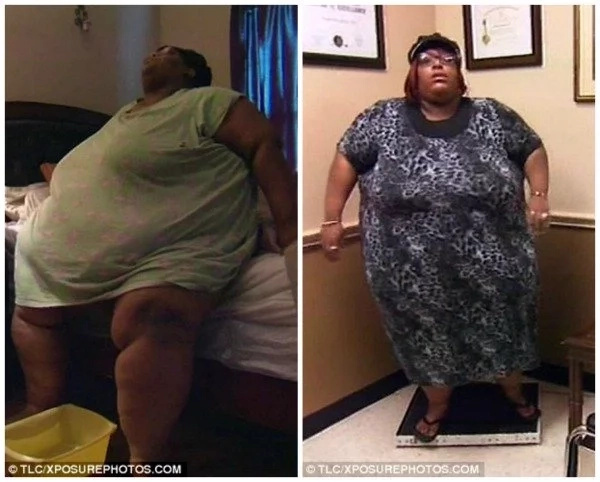 Determined woman weighing 272kg sheds 53kg after her mom died of extreme OBESITY (photos)