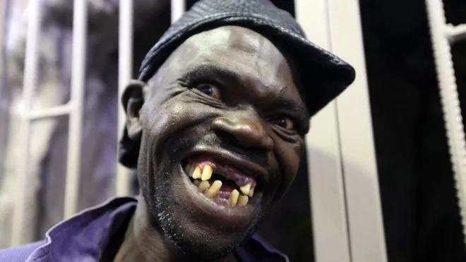 Zimbabwe yaandaa mashindano ya mwanamume sura mbaya zaidi