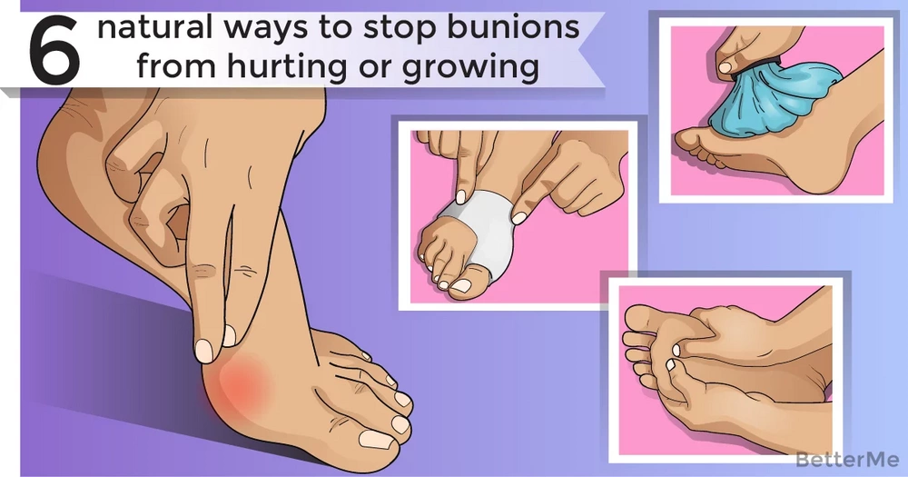 6 natural ways to stop bunions from hurting or growing