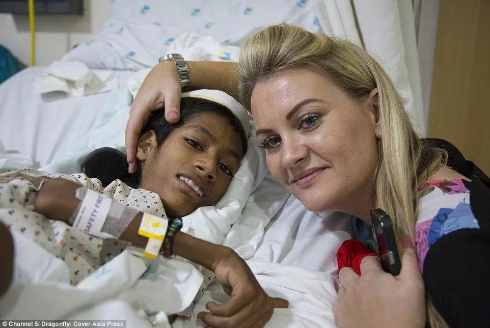 Niño recibe una cirugía que le cambia la vida