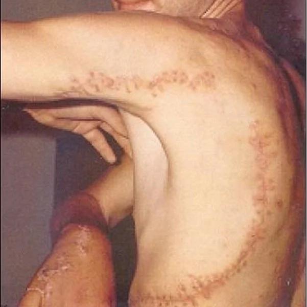 Horrifying Shark Attacks... And The Terrible Scars!