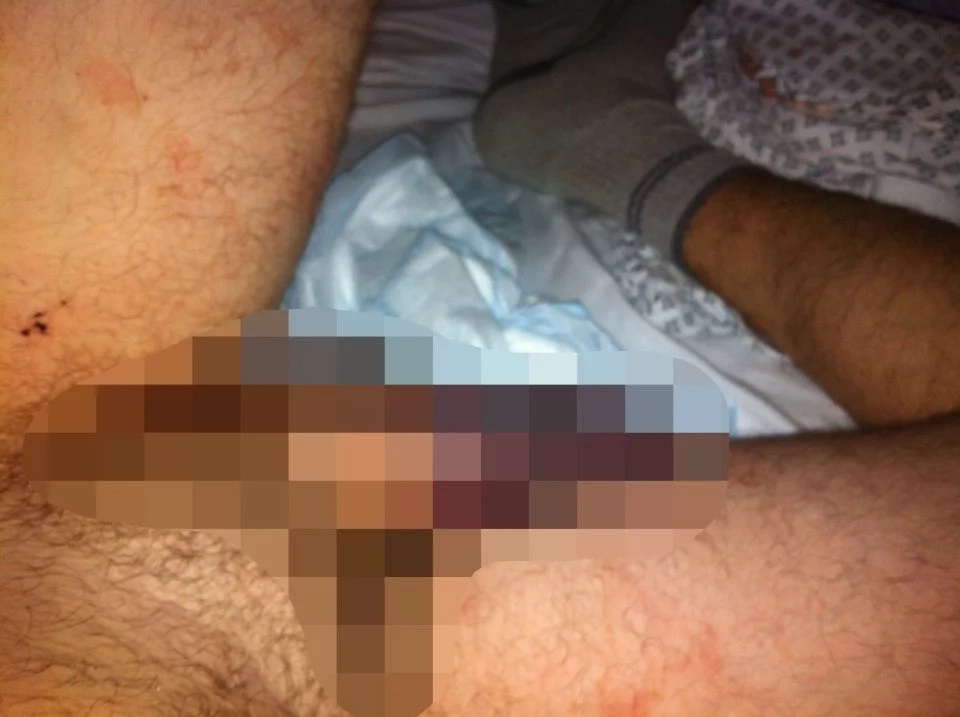 Bricklayer suffered injury after 'rigorous doggy style' caused his penis to snap in half (Photo)