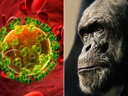 Scientists Have Tracked Down The First Human Aids Victim