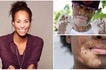 Photographer with vitiligo captures beauty of the condition in stunning photos