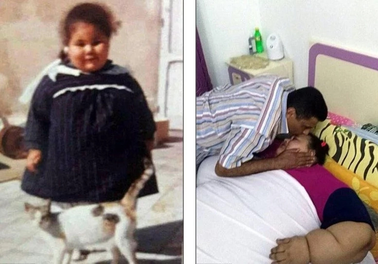 World's fattest woman reaches 495 KILOS and now needs life-saving surgery (photos)