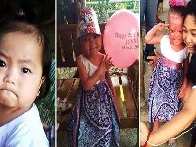 Pray for BengBeng! 6-year-old Pinay with mysterious skin disease breaks hearts on social media