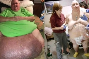 Meet immobile man who lived with 57kg tumour between his legs for over DECADE (photos, video)