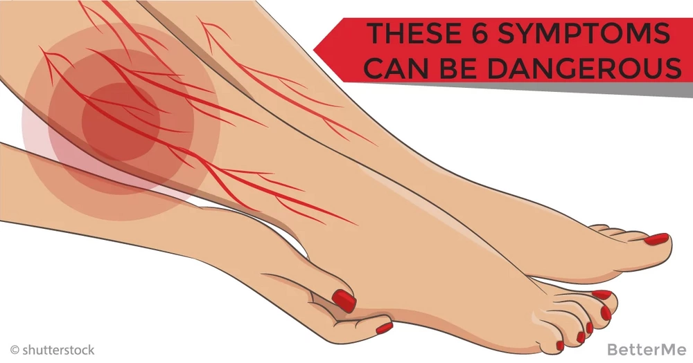 Call your doctor if you have these six symptoms! It can be dangerous blood clots