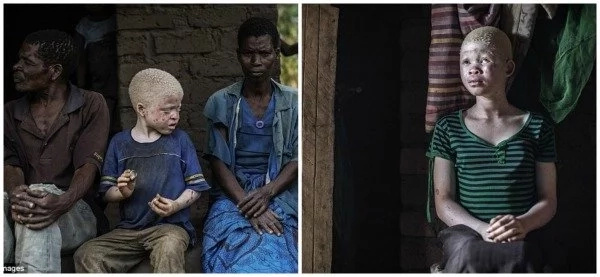 Sad! Witchdoctors hire hitmen to KILL albinos for their internal organs (photos, videos)