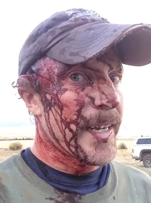 Hombre fue atacado salvajemente por un oso furioso