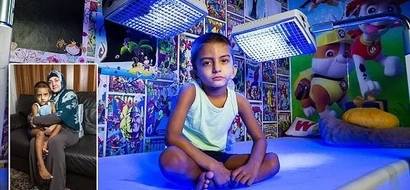 4-year-old boy spends 20 hours each day under blue lights to keep him alive (photos)