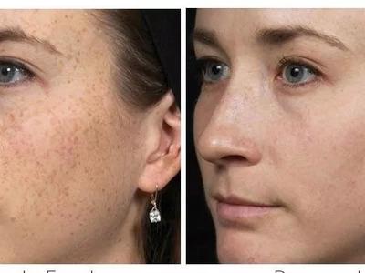 Elimina las manchas de tu rostro en solo 7 días con el método japonés en casa, es super efectivo
