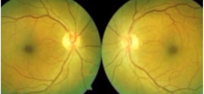 Man, 62, develops yellow dot in his eyes after sun gazing every day for 35 years