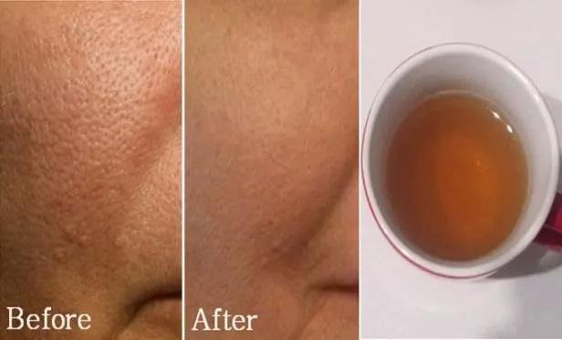 Cómo eliminar los poros de la cara al instante con solo 2 ingredientes