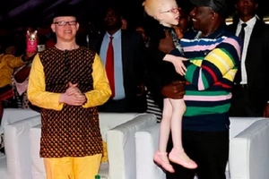 11 stunningly hot photos from Mr and Miss Albinism that will make your day twice better
