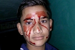 Boy weeps BLOOD from his ears, eyes, mouth 10 times a day- and doctors left baffled (photos, video)