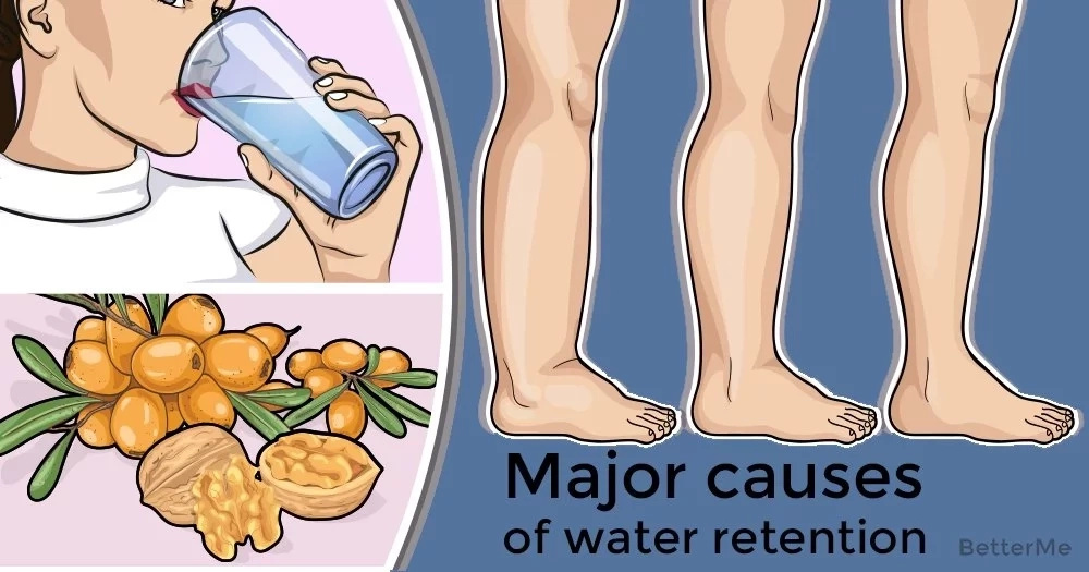 Major causes of water retention