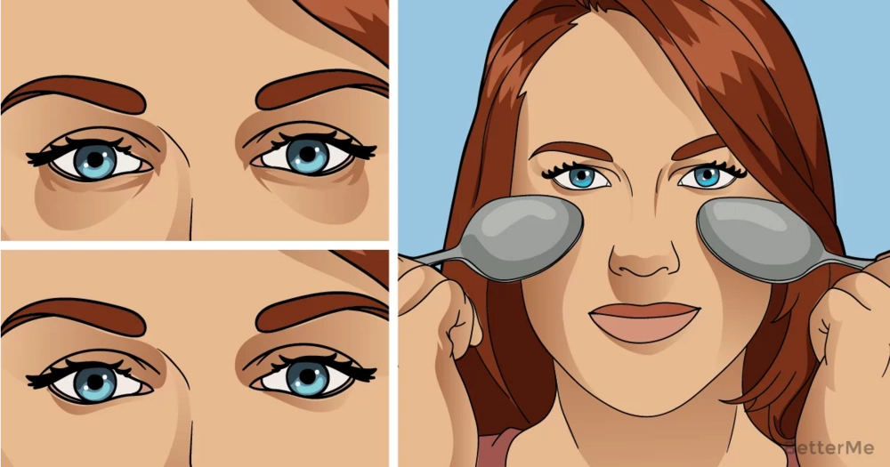 3 tips that can help you reduce dark circles