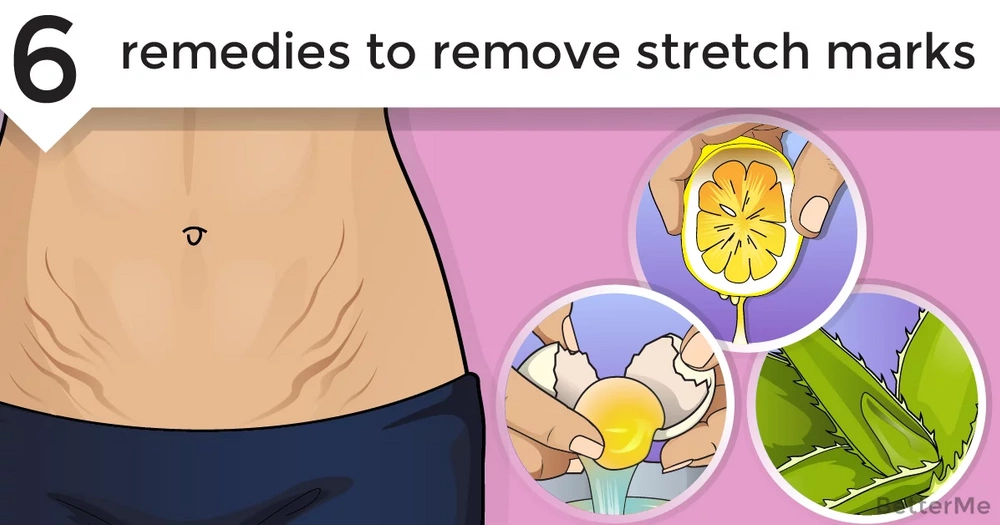 6 natural remedies to remove stretch marks