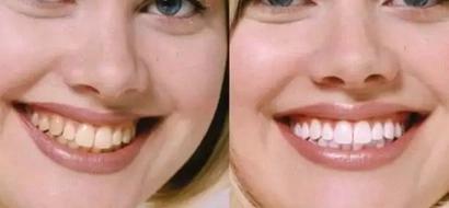 Conoce el efectivo descubrimiento con el que los dentistas podrían perder muchísimo dinero