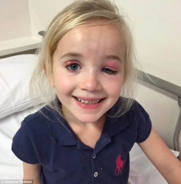 Little Girl's Eye Infection Turns Out To Be Something Way Worse, And The Doctor Was Lucky To See It