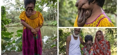 Meet young woman who lives WITHOUT face all her life (photos)