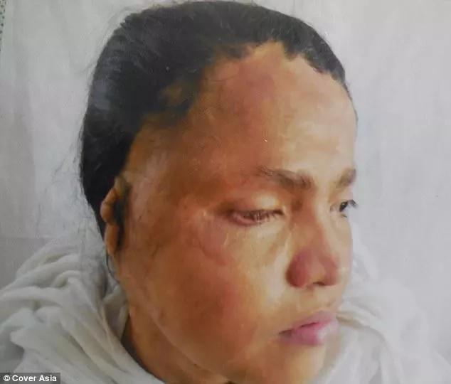 Kavita after the acid attack