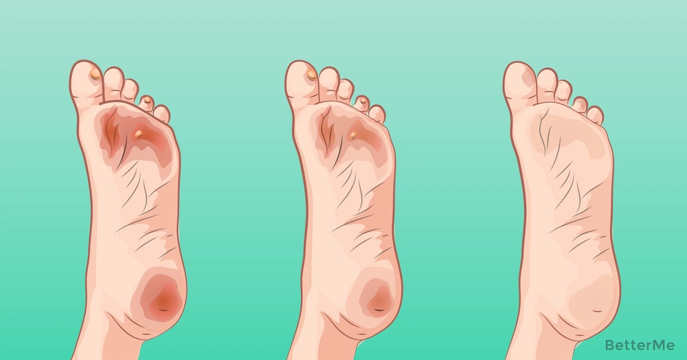 11 good ways to get rid of blisters and callus