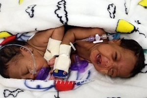 Tiny conjoined twins separated by 18 medics in 6-hour operation (photos)