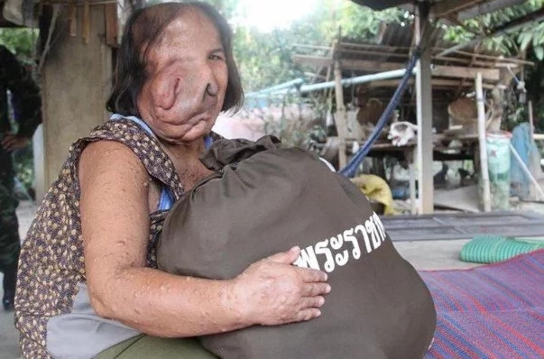 Woman's face MELTS after mysterious illness leaves her with TRUNK (photos)