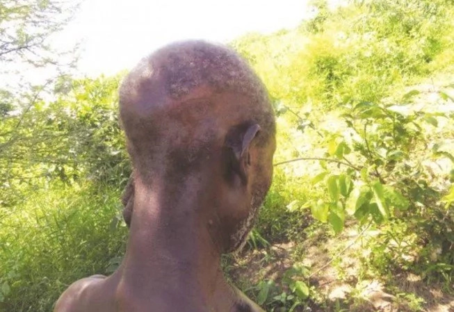 GRUESOME! Buffalo attack leaves man without IT (photo)