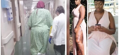 Woman who narrowly escaped death by fire shares her inspiring survival story 8 months later (photos)