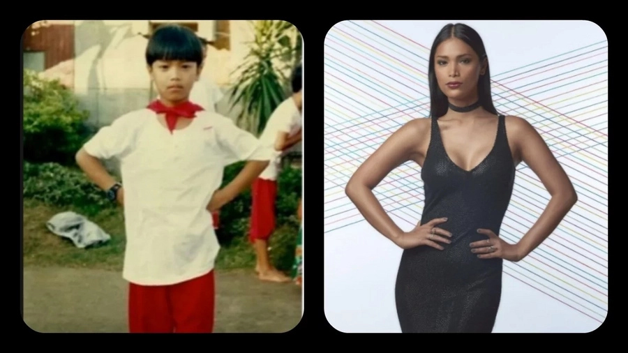 6 Remarkable Pinoy transgender before and after surgery