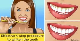 Effective 4-step procedure to whiten the teeth