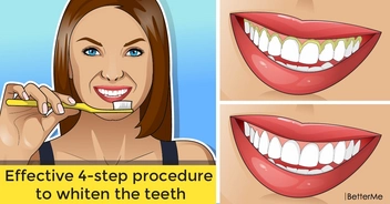Effective 4-step procedure to whiten the teeth
