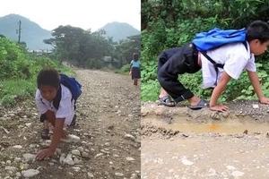 Inspiring boy crawls backwards going to school despite knee deformity