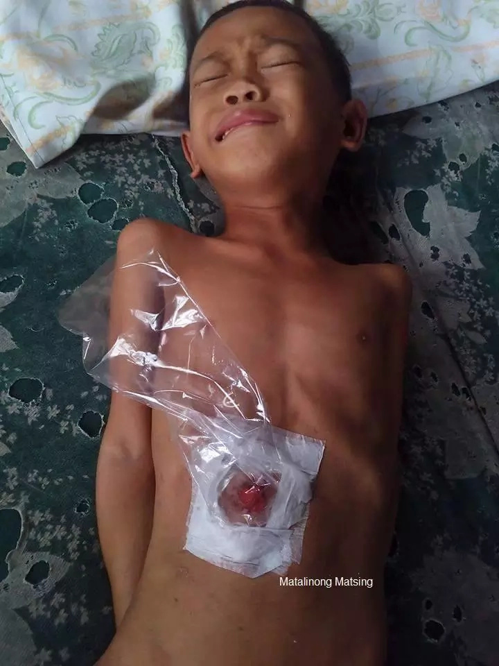 Netizens concerned with poor boy's condition