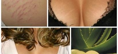 Encontramos la solución para las estrias en los senos, solo sigue estos 3 pasos así