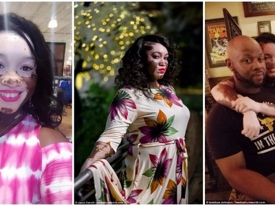 Beauty is beyond skin! Woman with vitiligo, 37, becomes a model to empower others with the condition