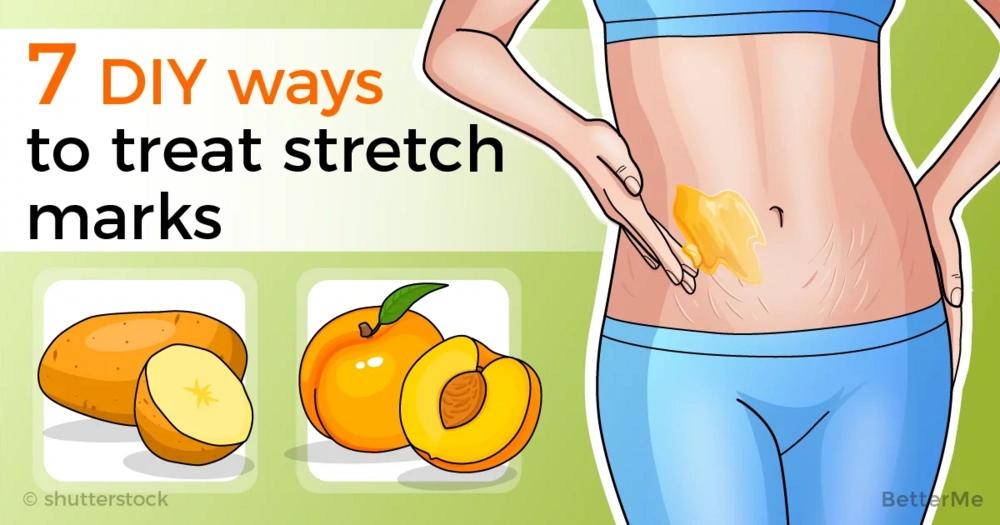 7 DIY ways to treat stretch marks