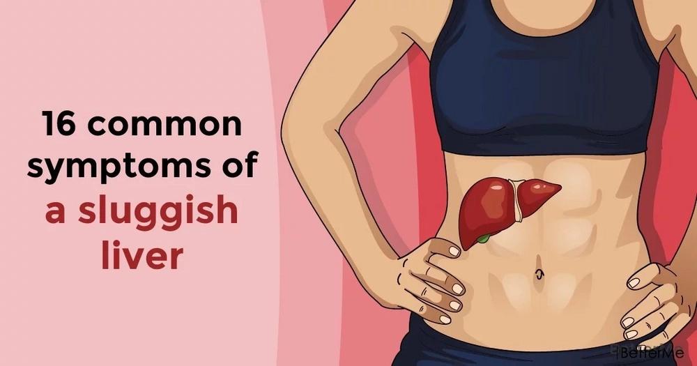 16 common symptoms of a sluggish liver