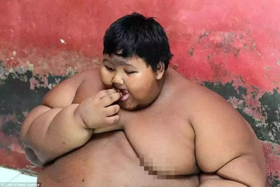 Obese boy, 10, who was constantly hungry and weighed 192kg loses 20kg after surgery