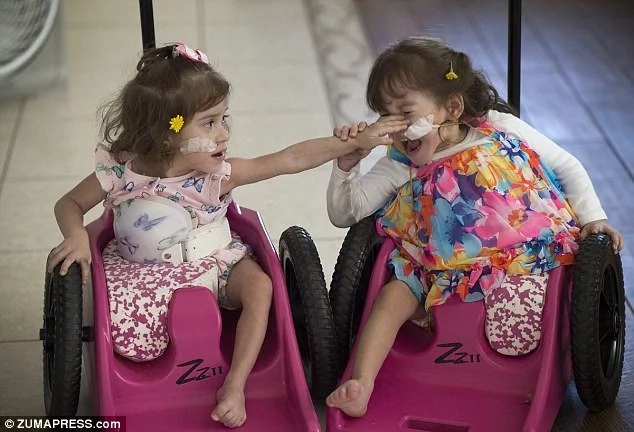 Twins whose uterus, digestive tract, and third leg were untangled in delicate surgery begin new life