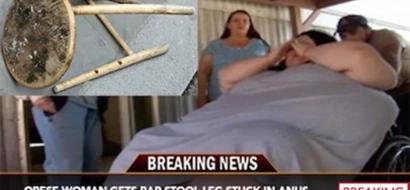 Doctores remueven la pata de un banco del ano de una mujer después de que la silla se quebrara al sentarse