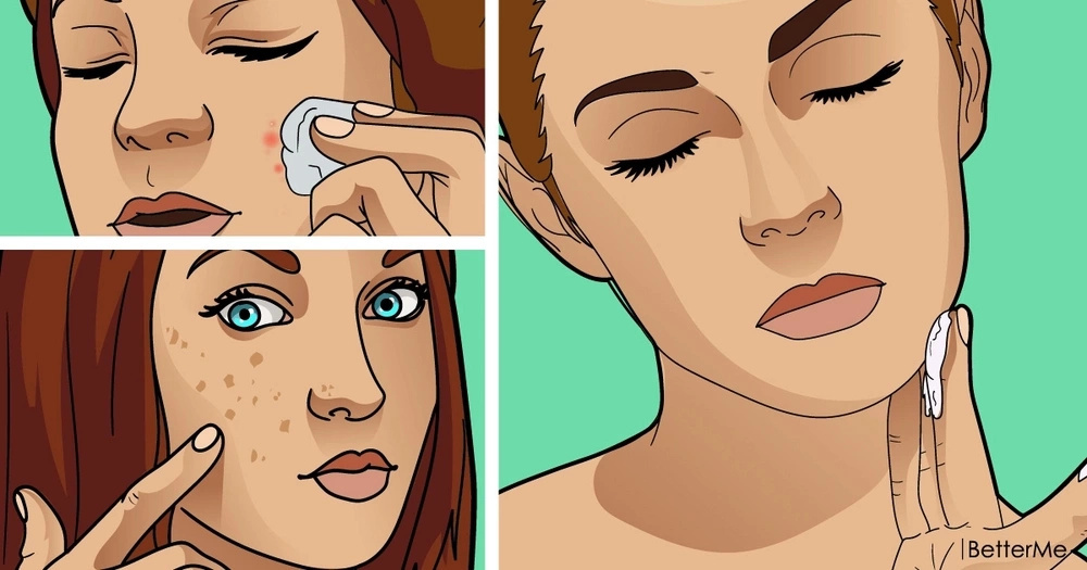 Best ways to eliminate skin tags, moles, blackheads, spots and warts