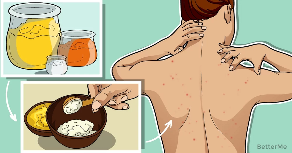 9 effective and simple steps that help you get rid of back acne