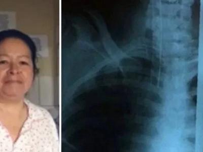 Abuela saltó de una terraza para salvar la vida de su nieta