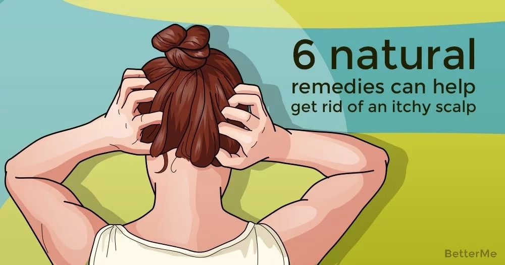 6 natural remedies can help get rid of an itchy scalp