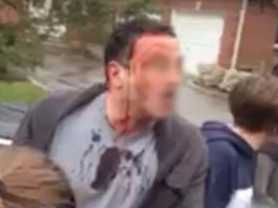 A Dad Trying To Protect His Son Gets Absolutely Destroyed By A Pack Of Teens